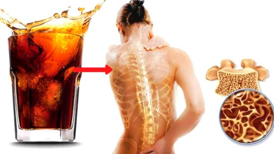 drink that destroy our bones